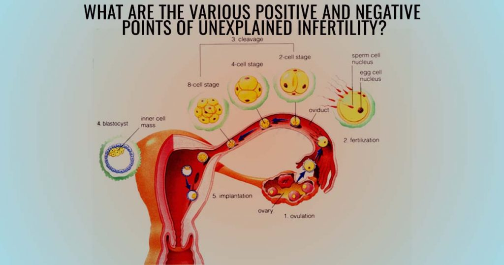 What are the various Positive and Negative points of Unexplained Infertility?