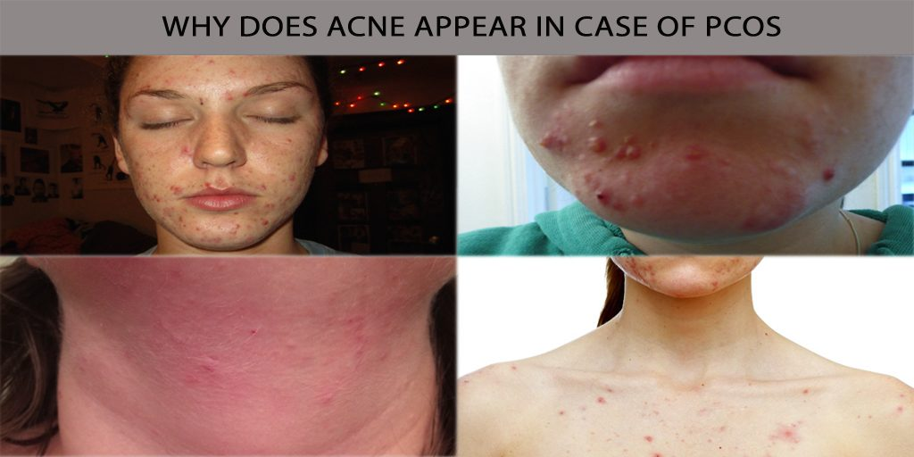 Why does Acne Appear in Case of PCOS