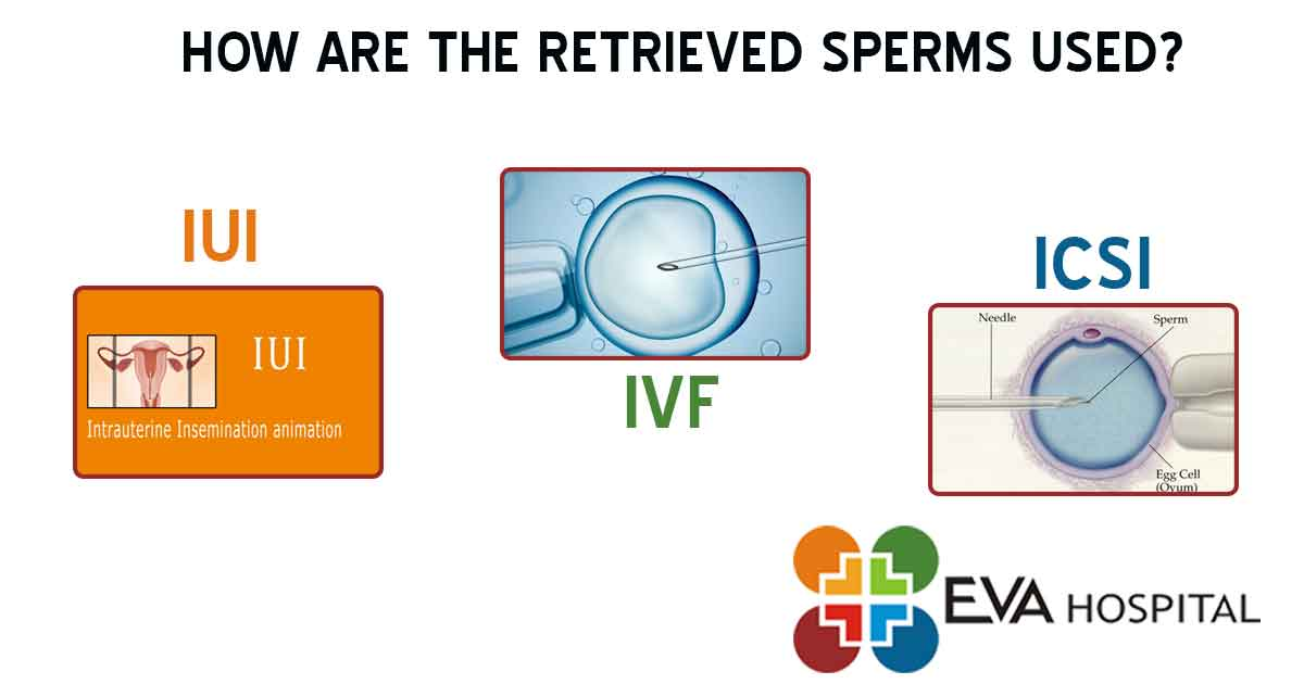How Are the Retrieved Sperms Used?