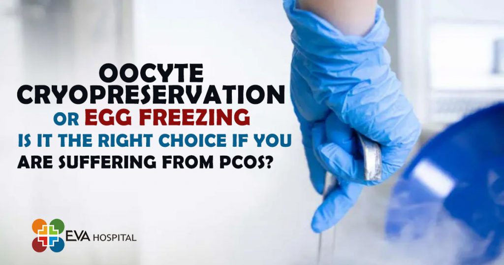 Oocyte cryopreservation Or Egg Freezing - Is it The Right Choice If You are suffering From PCOS